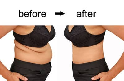 Testimonials for Bariatric Weight Loss Centers in the Pittsburgh PA area